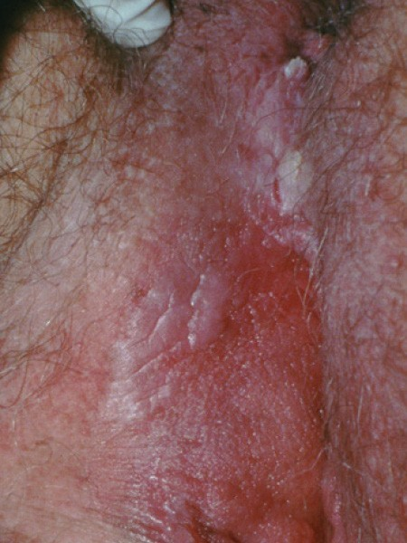 hpv itchy skin)