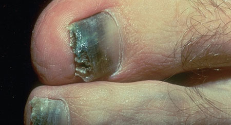 NAIL DISEASES AND NAIL HEALTH - Dermatologist in Sandy