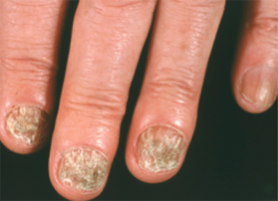 nails-with-ringworm-infection-1.png