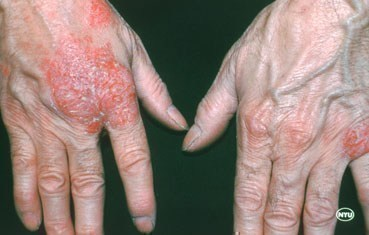nummular-dermatitis-_symptoms-blisters.jpg